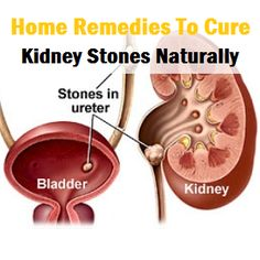 Home Remedies To Cure Kidney Stones Naturally