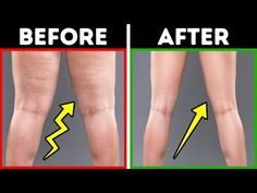 11 Easy Exercises to Slim Your Legs In 2 Weeks Cellulite: those dips and bumps under the skin that can show up on anyone no matter what their weight. Loose Leg Fat, Lose Thigh Fat Fast, Lose Belly Fat, Reduce Thighs, Tone Thighs, Slim Thighs, Slim Legs, Clamshell Exercise, Tips
