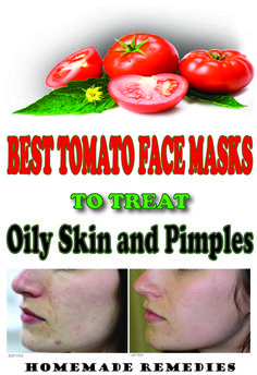 Best Tomato Face Masks To Treat Oily Skin And Pimples