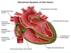 Heart's electrical system controls all the events that occur when our heart pumps blood. The cardiac conduction system is also called the electrical system. The sinoatrial node (SAN), located… Heart Electrical, Bundle Branch Block, Parts Of The Heart, Heart Anatomy, Cardiac Nursing, Nursing Mnemonics, Heart Care, Heart Rhythms, Heart Palpitations