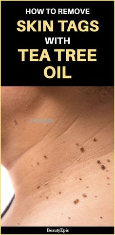 Tea Tree Oil for skin tags There are several counter medications that are suggested by doctors for curing skin tags. But here some remedies on how to use tea tree oil for skin tags Natural Remedies For Arthritis, Natural Sleep Remedies, Holistic Remedies, Home Remedies, Homeopathic Remedies, Natural Cures, Health Remedies, Oils For Dandruff, Skin Growths