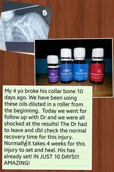 Bone Healing Testimony!!! Palo Santo, Aroma Siez, PanAway, Lemongrass