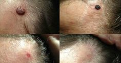Unfortunately, there's no one on the planet who does not scar. But luckily, there is an excellent natural home remedy that reduces them, fade and nearly disappear. With this cream scars vanish in a few weeks! Very simply prepared, just follow the instructions. You will be amazed by the selection of groceries, since probably you Continue Reading