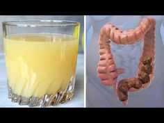 Colon Cleansing Remedies The 3 Juice Colon Cleanse That Can Clean All The Crap Out Of Your Body System Like Nothing Else – Alternative Cancer Solutions Colon Cleanse Powder, Colon Cleanse Tablets, Colon Cleanse Diet, Colon Detox, Natural Colon Cleanse, Body Cleanse, Cleanse Detox, Healthy Cleanse, Healthy Juices