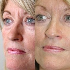 The Japanese Massage Facelift At Work: Restoring Your Face To It's Past Youthful And Shapely Look