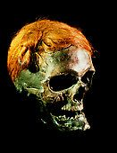 """Osterby Man. Mummified head of Osterby Man, a """"bog body"""" dated between 70-220 AD. His well-preserved hair is tied in a Swabian knot. This severed head was discovered in 1948 wrapped in a deerskin cape in a bog at Kohlmoor near Osterby, Germany. This elderly man had 25 cm long hair. The hairstyle, a Swabian knot, named after the male coiffure of the period in that part of Germany, was described by the Roman author Tacitus in his book Germania (98 AD)."""