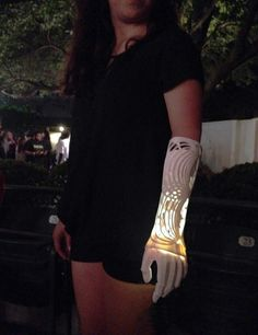 The 1st Iteration of Ivania's Prosthetic Arm.