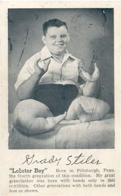 "Grady F. Stiles, Jr., aka ""Lobster Boy,"" was born in 1937, the sixth in a long line of lobster-men to work as a circus freak. When his eldest daughter was engaged to marry a boy of whom Grady disapproved, Grady shot and killed the boy, but got off with probation. Later, after he retired to the circus-centric town of Gibsonton, he became so abusive to his family that his wife and step-son hired a neighbor to kill him. He was shot to death while watching TV. Everyone involved got prison."