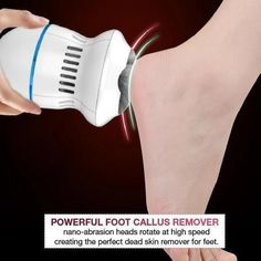 Electric Callus Remover, Dry Cracked Heels, Foot File, Tips Belleza, Feet Care, Dead Skin, Smooth Skin, Beauty Skin, Body Care