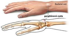 There are natural remedies for ganglion cysts and you can find some of them here. They will help your tendons and joints. Our tendons and joints often suffer from ganglion cysts which are small, rounded bags filled with viscous and dense liquid. Natural Home Remedies, Natural Healing, Herbal Remedies, Health Remedies, Ganglion, Lipoma Removal, Hand Surgery, Home Treatment, Natural Remedies
