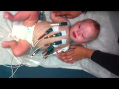 Our son was born with Down syndrome. We do a daily video on our site about his life. In this video he is getting an EKG to check on his heart.