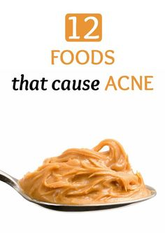 12 Foods That Cause Acne There are certain foods you could be eating that can cause you to break out or can even exacerbate your annoying issue. Here are 12 foods that cause acne. Doterra Acne, Food For Acne, Acne Causes, Food That Causes Acne, Foods That Fight Acne, Bad Acne, Types Of Acne, Unhealthy Diet, Hormonal Acne