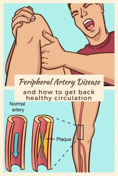 Peripheral artery disease and how to get back healthy circulation. This knowledge is really important in the event that doctors aren't around after SHTF.