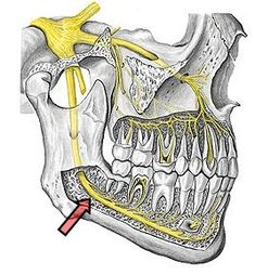 Nervo alveolar inferior