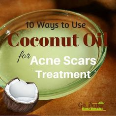 Coconut Oil For Acne Scars: How To Remove Acne Scars With Coconut Oil, Is Coconut Oil Good For Acne Scars