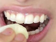 Dental whitening treatment easy teeth whitening,local teeth whitening mobile teeth whitening,opalescence whitening teeth whitening options at dentist. Teeth Care, Skin Care, Beauty Secrets, Beauty Hacks, Cute Diy Projects, Hair Loss Remedies, White Teeth, Dental Care, Dental Hygiene
