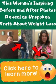 This Woman's Inspiring Before and After Photos Reveal an Unspoken Truth About Weight Loss Wtf Funny, Funny Jokes, Hilarious, Wtf Fact, Everything About You, Beautiful Fish, Wtf Fun Facts, Funny Pins, Health Fitness