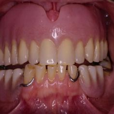 Partial dentures with metal frameworks have metal clasps that can be visible. This patient has a full upper denture and a partial lower denture. Dental Health, Oral Health, Dental Care, Teeth Pictures, Wisdom Teeth Removal, Dental Services, Dental Assistant, Cosmetic Dentistry, Home Remedies