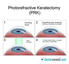 PRK (photorefractive keratectomy) is a type of refractive surgery to correct myopia (nearsightedness), hyperopia (farsightedness) and astigmatism. PRK was the first type of laser eye surgery for vision correction and is the predecessor to the popular LASIK procedure. (1996?) Prk Eye Surgery, Laser Eye Surgery, Covering Dark Circles, Dark Circles Under Eyes, Work Train, Toenail Fungus Treatment, Puffy Eyes, Toe Nails, Fungi