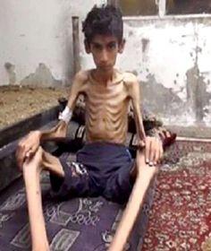 "Syrer aus belagerter Stadt flehen: ""Bitte beendet die Hungerblockade!"""