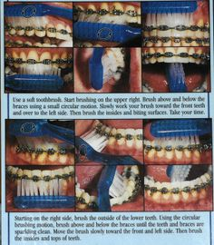 brushing with braces | braces in teeth 10 10 from 69 votes braces in teeth 3 10 from 72 votes