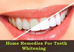 Home #Remedies For #Teeth #Whitening