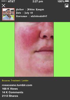 Rosacea Treatment London 053322 - Rosacea Free Forever.