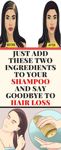 Hair Loss Remedies But, also other reasons can speed up and promote the hair loss. Stress can cause a hormonal imbalance and lead to excessive hair loss. Stop Hair Loss, Prevent Hair Loss, Déséquilibre Hormonal, What Causes Hair Loss, Excessive Hair Loss, Male Pattern Baldness, Hair Loss Shampoo, Hair Loss Women, Hair Loss Remedies