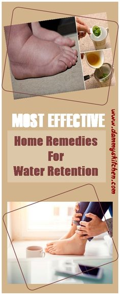 8 Simple Home Remedies For Water Retention #health #healthcare #naturalcure #waterretemption