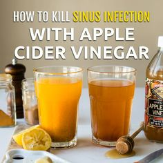 Apple cider vinegar is a remedy that has helped millions of men and women who suffer from sinusitis. Apple cider vinegar is a remedy that has helped millions of men and women who suffer from sinusitis. Cold Remedies, Natural Health Remedies, Natural Cures, Herbal Remedies, Natural Treatments, Natural Remedies For Cold, Bloating Remedies, Natural Health Tips, Natural Healing