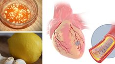 Watch This Video Captivating Clear Blocked Arteries with Natural Health Remedies Ideas. Splendid Clear Blocked Arteries with Natural Health Remedies Ideas. Heart Blockage, Lemon Uses, Clogged Arteries, Clear Heart, Juicing Benefits, Health Benefits, Blood Pressure Remedies, Improve Blood Circulation, Lower Blood Pressure