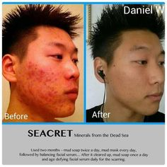 Severe acne, results after using Seacret mud soap & mud mask. Cystic Acne On Chin, Clear Skin Overnight, Cystic Acne Remedies, Pimples On Forehead, Overnight Acne Remedies, Best Acne Treatment, Facial Serum, Facial Care, How To Get Rid Of Acne