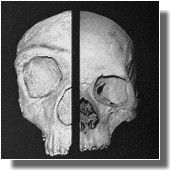 I think this is a comparison between the St Michael's Gibraltar cave skull and of a modern'er human...  Them and Us: How Neanderthal predation created modern humans - new book and theory of human origins