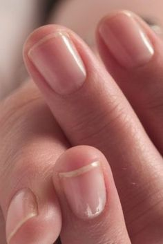 How to Treat Cuticles   Styles At Life