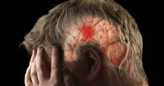 sintomi di un ictus