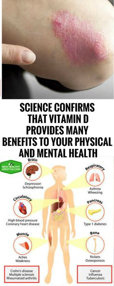 SCIENCE CONFIRMS THAT VITAMIN D PROVIDES MANY BENEFITS TO YOUR PHYSICAL AND MENTAL HEALTH^,