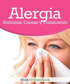 #Alergia - Qué Es, Síntomas, Causas y Tratamiento #RemediosNaturales