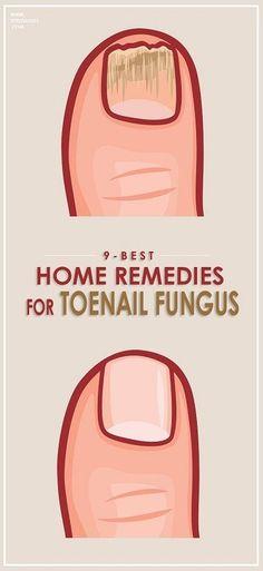 How to Get Rid of Toenail Fungus.