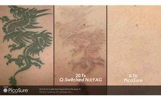 Dr. Rice Explains PicoSure Laser Tattoo Removal | AmongMen