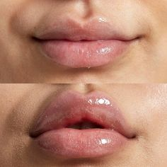 Angular cheilitis may appear like a straightforward mouth sore, however these uncomfortable spots at the corners of your lips may point to a serious condition. Discover more! Diy Lip Plumper, Natural Lip Plumper, Natural Lips, Lip Plumpers, Eyebrow Makeup Tips, Eye Makeup, Glossy Makeup, Doll Makeup, Makeup Brush