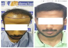 Worried About Baldness…? Get AFUE Hair Transplant in Pune @ La Densitae Hair Transplant Center with Affordable Hair Transplant Cost. Easy & EMI Available Hair Transplant Results, Hair Transplant Cost, Pune, Aesthetic Dermatology, Lip Fillers, Hair Regrowth, Trending Memes, Fall Hair, Hair Loss