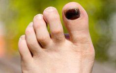 rid of foot fungus