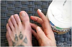 Read the comment about salt  and coconut oil - 3 Simple Home Remedies for Toenail Fungus | Everyday Roots