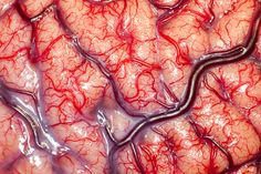 One of the winners of the recent Wellcome Trust Image Awards is a stunning photograph of an epileptic patient's brain during a surgical procedure.
