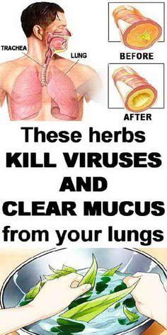 These Herbs Kill Viruses And Clear Mucus from Your Lungs - Page 6 of 6 - Your Health Herbal Remedies, Health Remedies, Home Remedies, Natural Remedies, Health And Beauty Tips, Health And Wellness, Health Fitness, Get Healthy, Healthy Tips