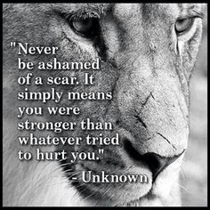"""I have so many scars, and I'm trying to learn to embrace them. This quote certainly helps. """"Never be ashamed of a scar. It simply means you were stronger than whatever tried to hurt you."""" -Unknown"""