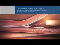 VenaSeal Closure System animation - YouTube