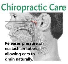 eustachian tube disorder on Pinterest | Chiropractic ...