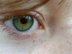 Central Heterochromia by thelifestream