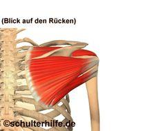 Schulterschmerzen, Das impingement / Impingementsydrom ist in vielen Fällen die Schultererkrankung die zu den Schmerzen in der Schulter führen